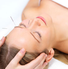 acupuncture face lifting